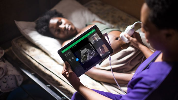 Philips Lumify integrated tele-ultrasound powered by Reacts